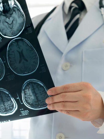 Máster experto en Neurología (Con Certificación Universitaria Internacional y Reconocimiento de 30 ECTS)